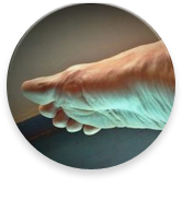 podiatrists for arthritis
