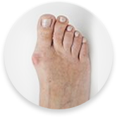 podiatrists for bunions
