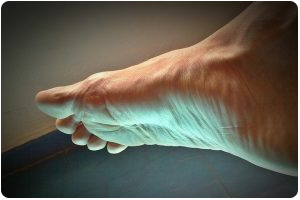wayne hewitt nj foot doctor for foot arthritis